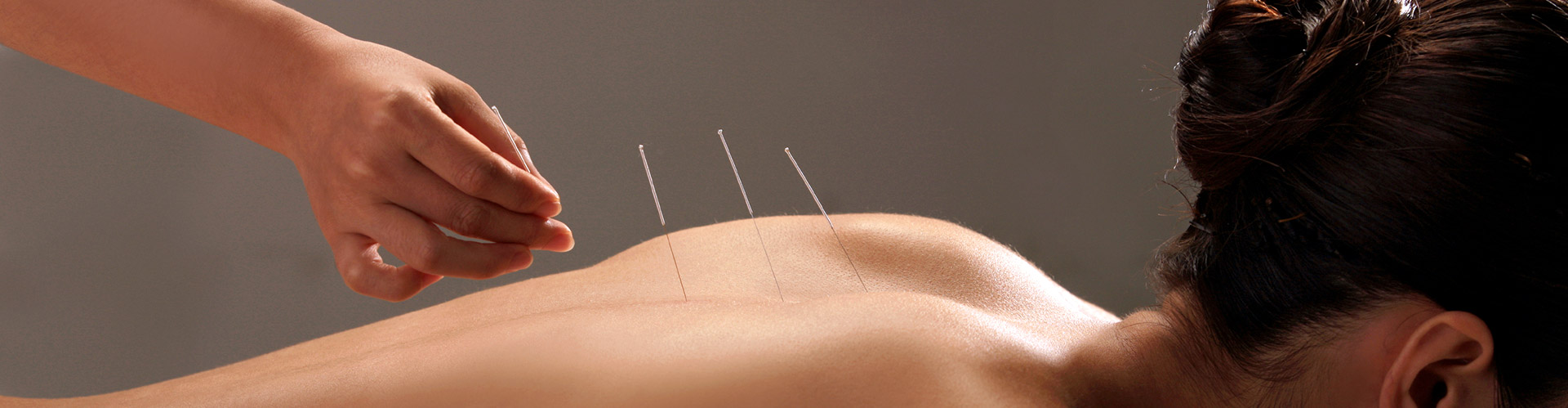 Acupuncture in Michigan